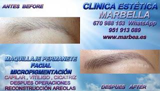 microblading Málaga Clínica Estética Maquillaje Permanente Facial,  Micropigmentación Capilar y microblading cejas Málaga y Marbella: Te ofrecemos la mayor calidad de nuestroservicio con los mejores expertos en micropigmentación capilar y microblading cejas
